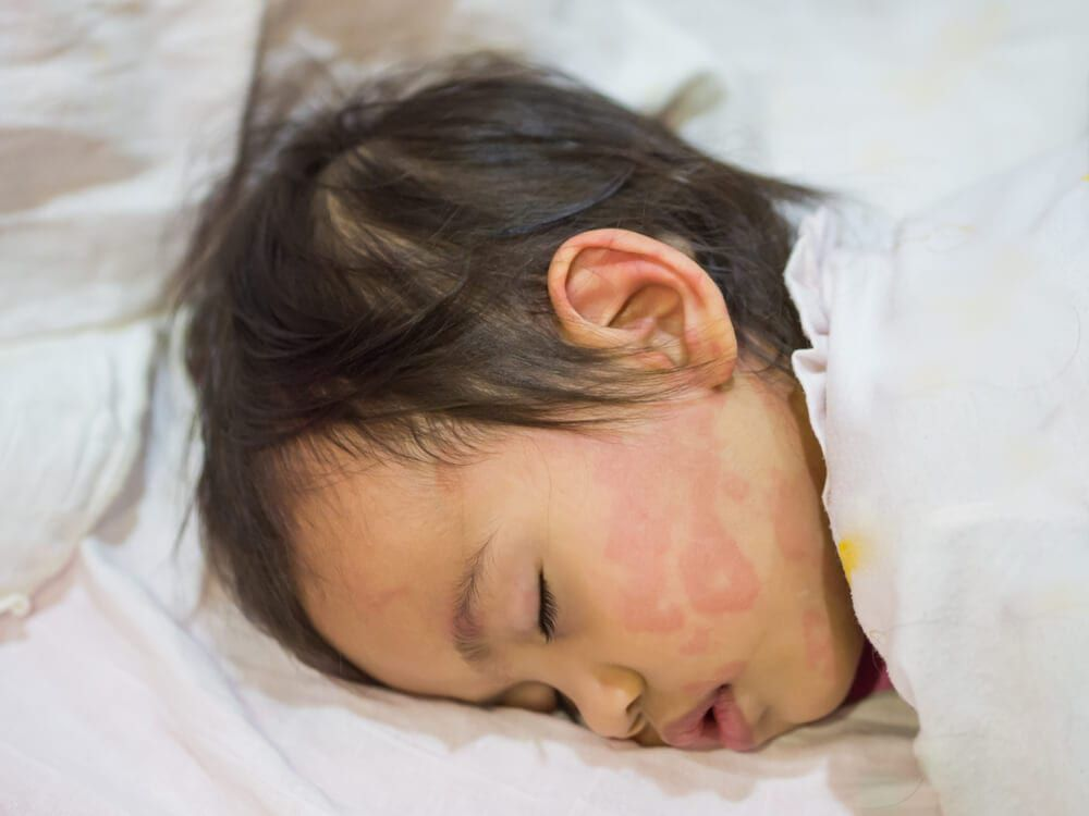 child sleeping with a case of hives